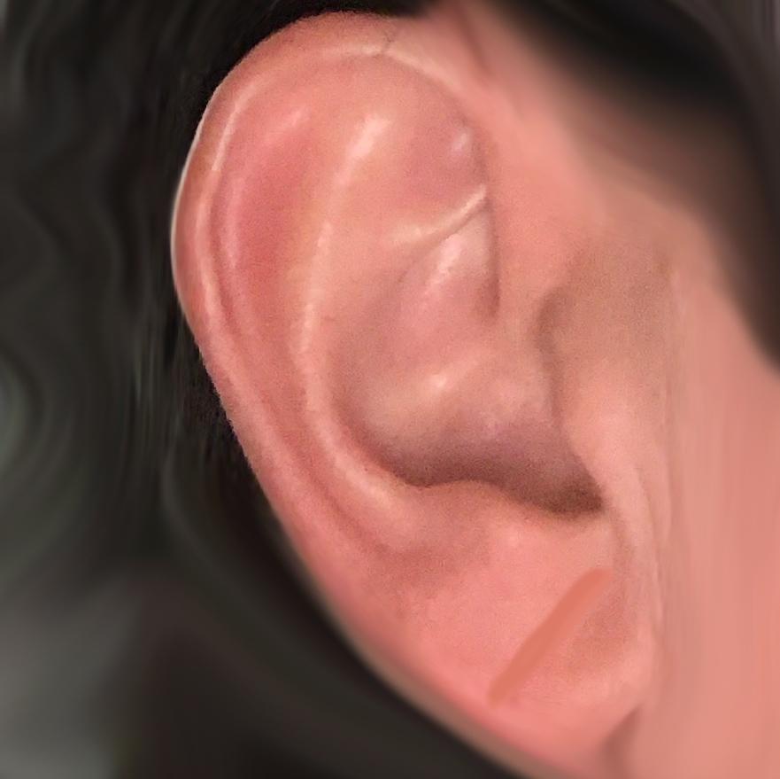Herzerkrankung an Ohren erkennen